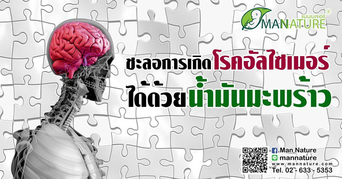 ชะลอการเกิด โรค อัลไซเมอร์ ได้ด้วย น้ำมันมะพร้าว